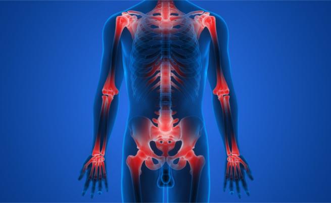 A inflamação crônica: os riscos para aqueles que negligenciam a inflamação