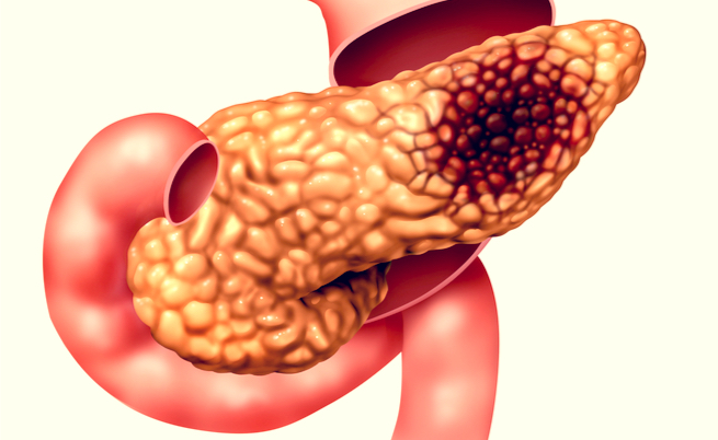 Câncer de pâncreas: a sobrevivência está ligada a 4 genes