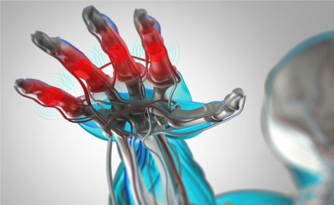 Chega na Itália um novo medicamento contra a artrite reumatóide