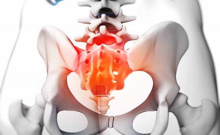 Coccidinia: quando o cóccix dor não passa