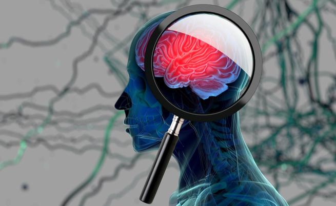 Doença de Alzheimer: que culpa tem açúcar?