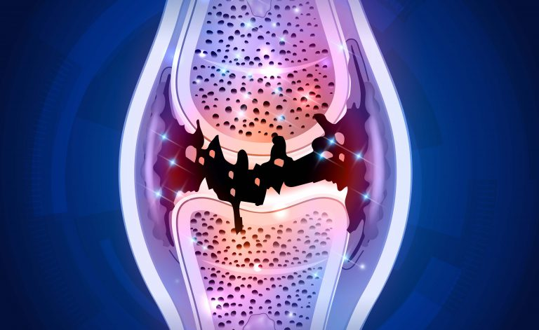 Dor nas articulações menopausa: como tratálos melhor