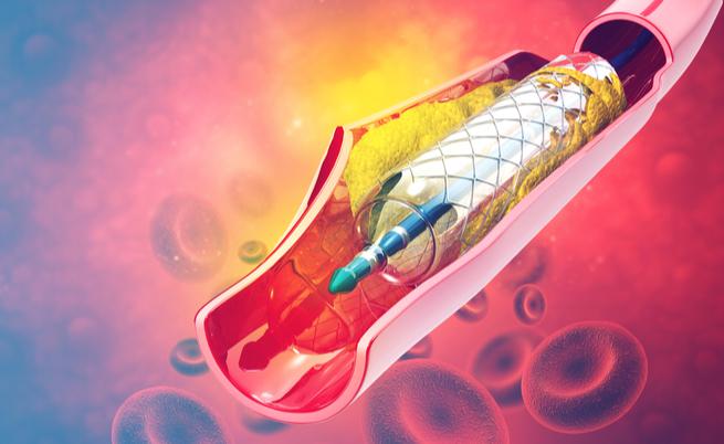 Esclerose múltipla: a angioplastia é eficaz ou não?