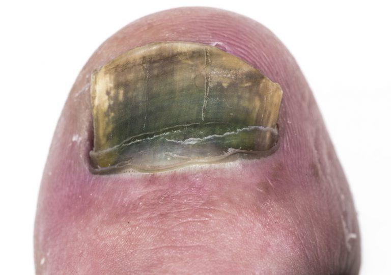 Manchas verdes nas unhas? Infelizmente, você tem o molde!