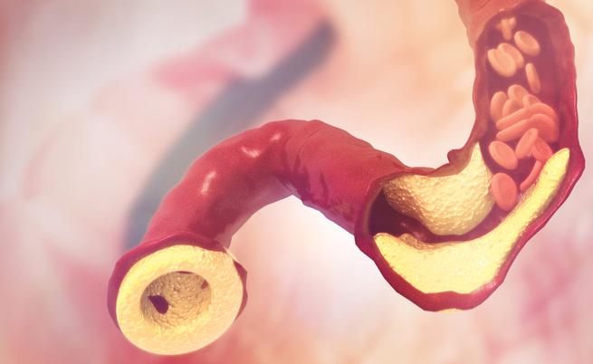 O colesterol alto? Há novos recursos importantes para mantêlo sob controle