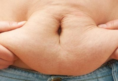 flacidez na barriga